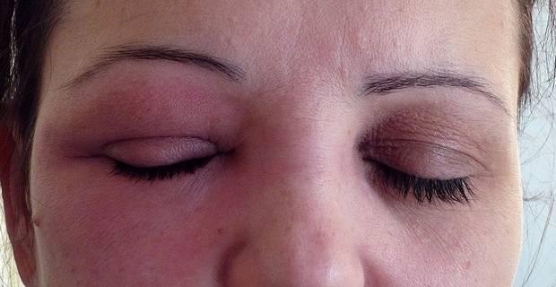 allergie-maquillage